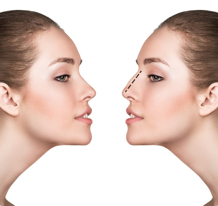 59932560 - female face, before and after cosmetic nose surgery isolated on white